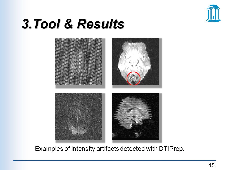 Examples of intensity artifacts detected with DTIPrep.