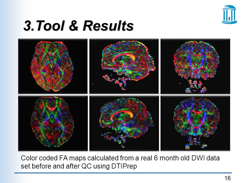 3.Tool & Results Color coded FA maps calculated from a real 6 month old DWI data set before and after QC using DTIPrep.