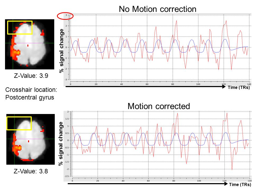 No Motion correction Motion corrected Z-Value: 3.9