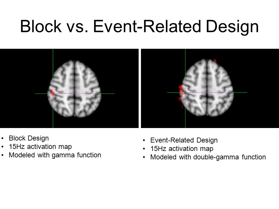 Block vs. Event-Related Design