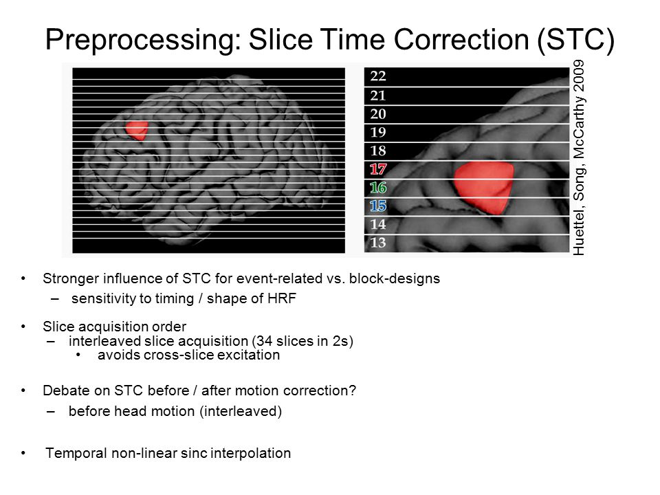 Preprocessing: Slice Time Correction (STC)