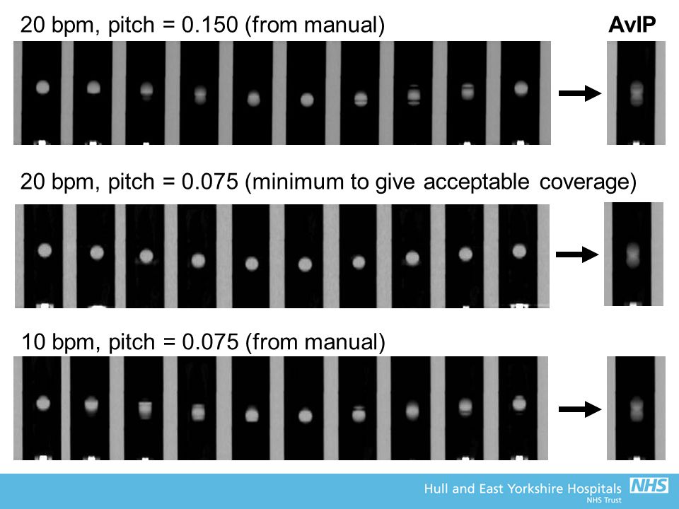 20 bpm, pitch = 0.150 (from manual)