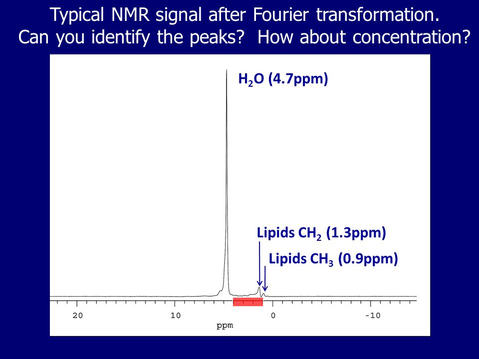 Typical NMR signal after Fourier transformation.