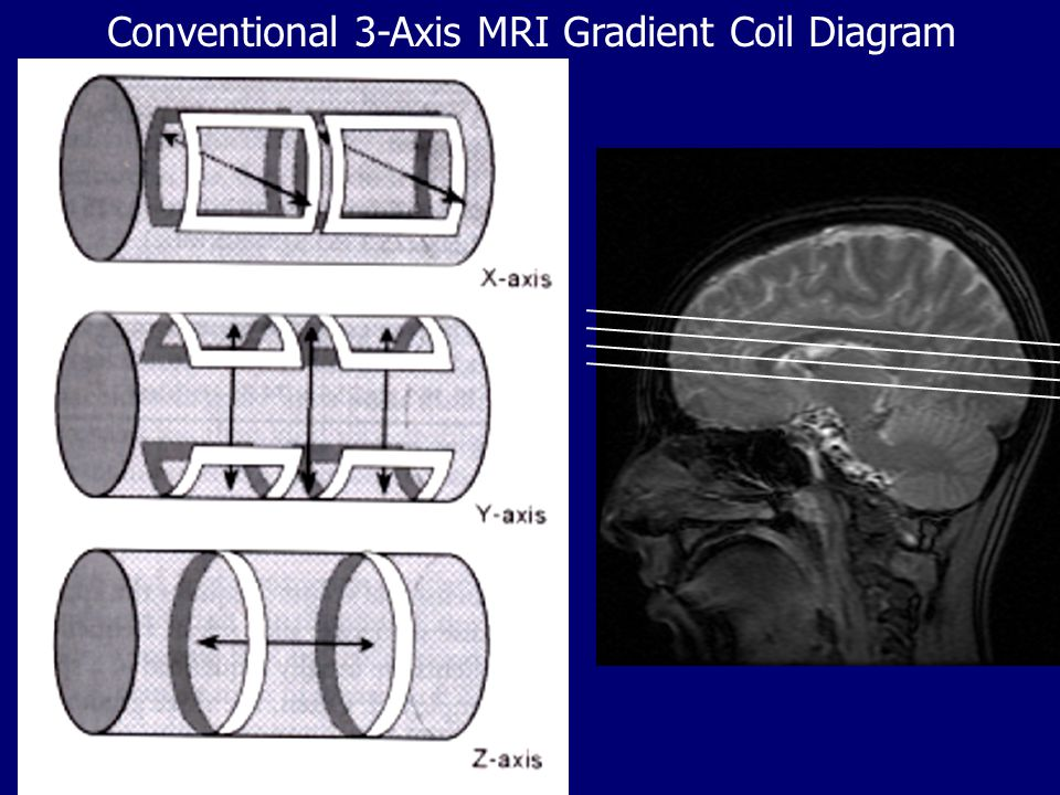 Conventional 3-Axis MRI Gradient Coil Diagram