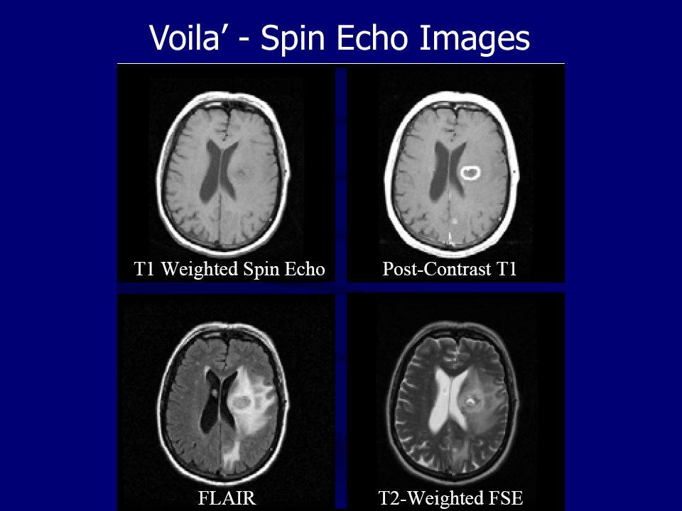 Voila' - Spin Echo Images