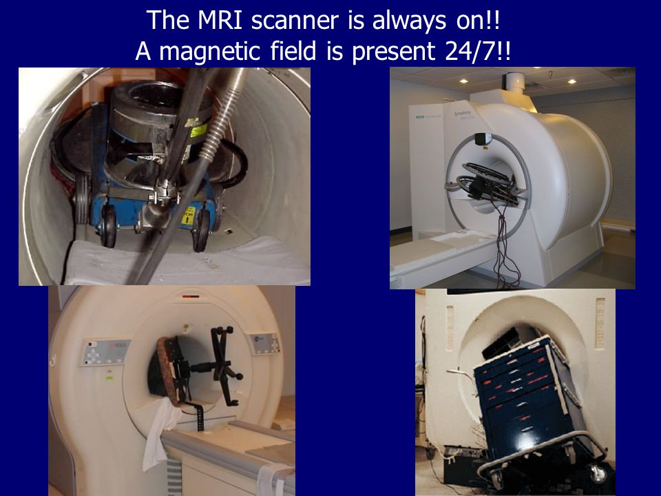 The MRI scanner is always on!! A magnetic field is present 24/7!!