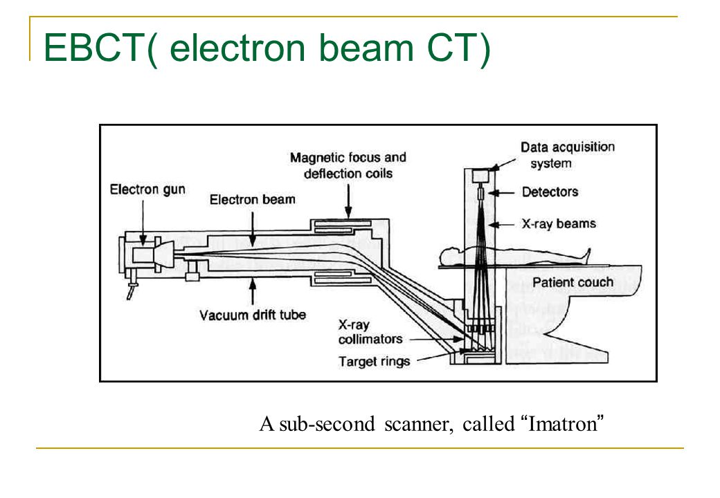 EBCT( electron beam CT)