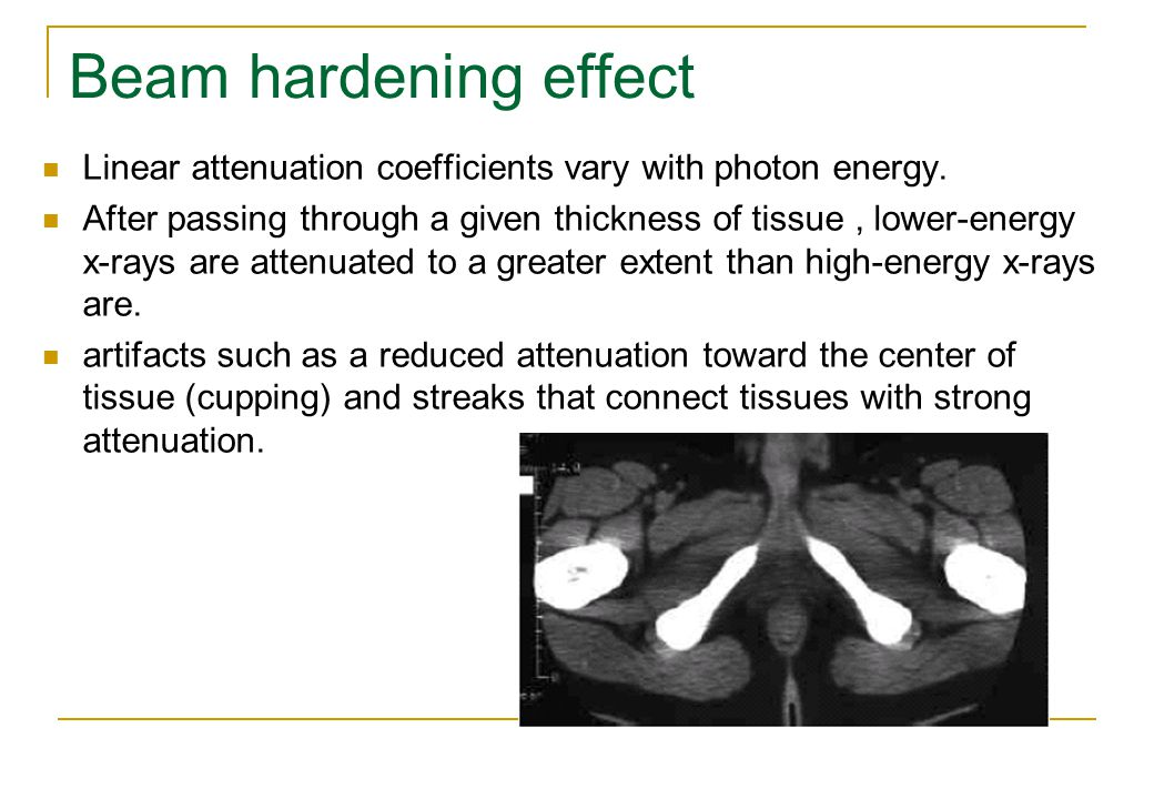 Beam hardening effect Linear attenuation coefficients vary with photon energy.