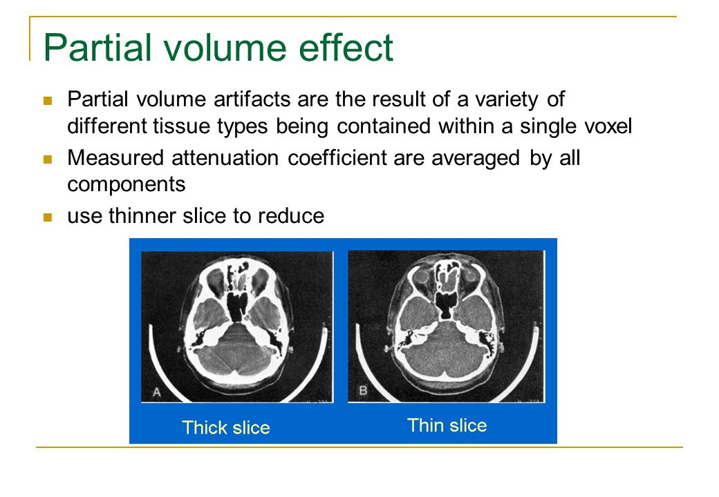Partial volume effect Partial volume artifacts are the result of a variety of different tissue types being contained within a single voxel.