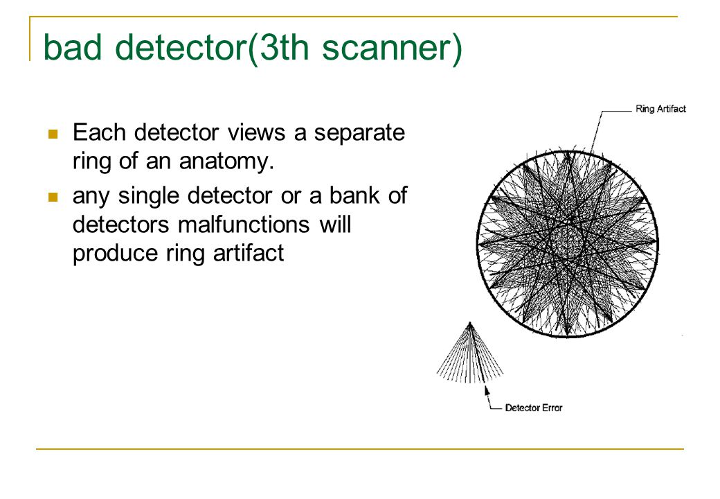 bad detector(3th scanner)