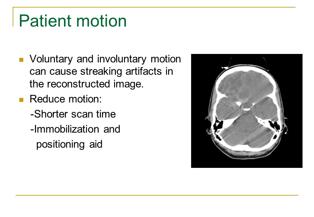 Patient motion Voluntary and involuntary motion can cause streaking artifacts in the reconstructed image.
