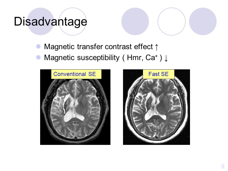 Disadvantage Magnetic transfer contrast effect ↑
