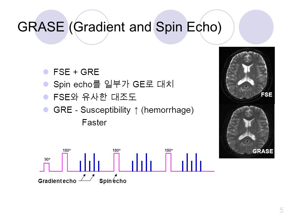 GRASE (Gradient and Spin Echo)