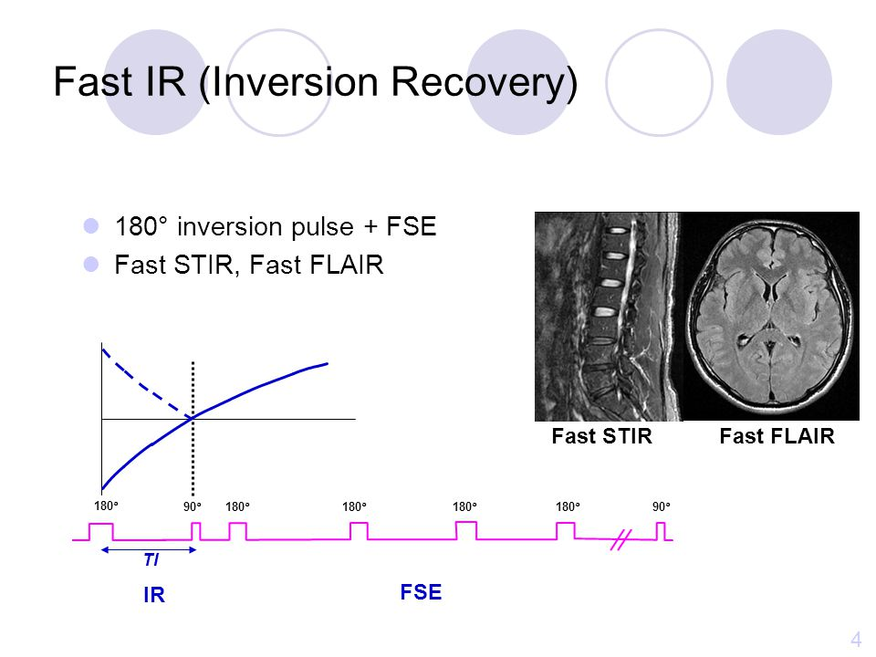Fast IR (Inversion Recovery)