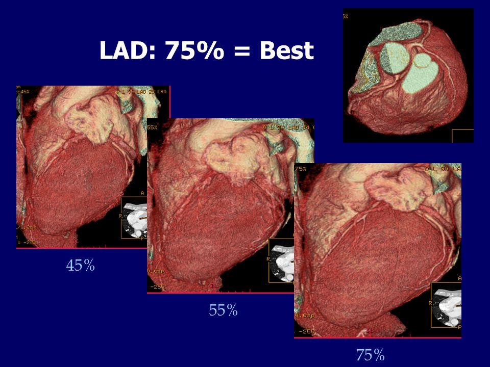 LAD: 75% = Best 45% 55% 75%