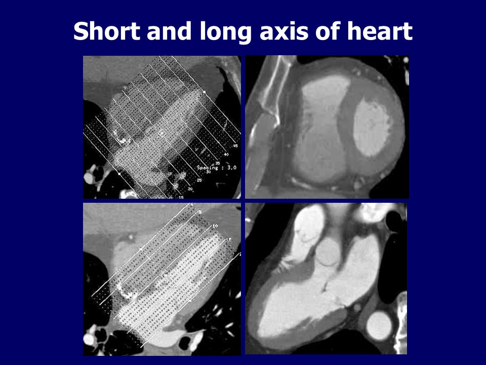 Short and long axis of heart