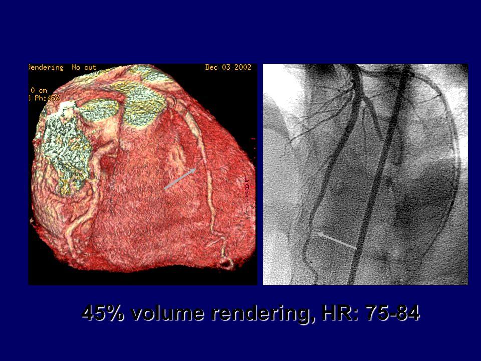 45% volume rendering, HR: 75-84