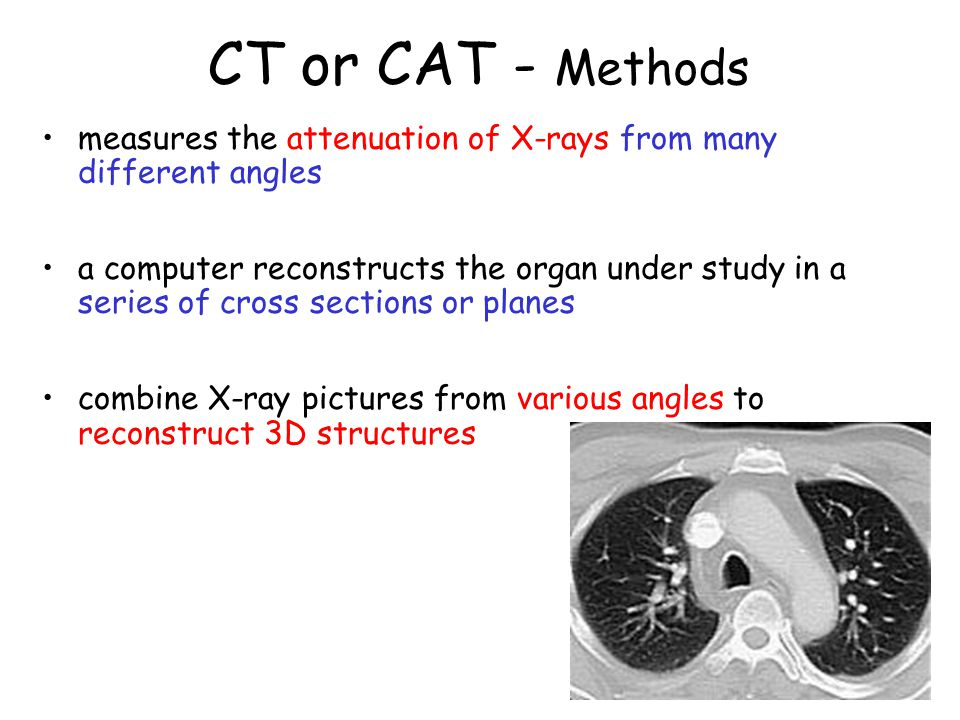 CT or CAT - Methods measures the attenuation of X-rays from many different angles.