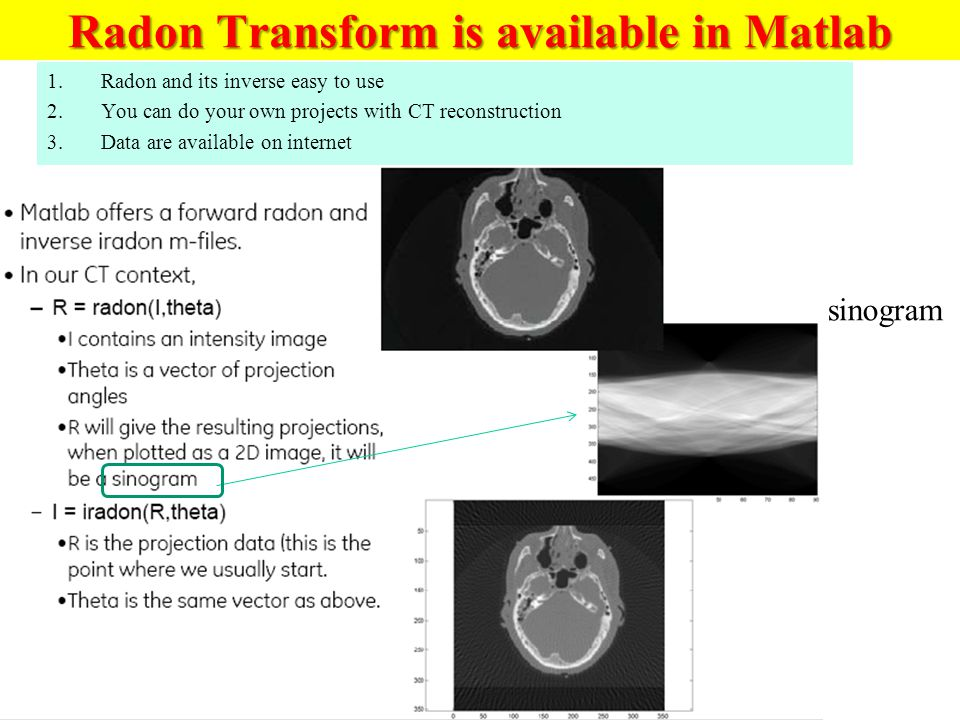 Radon Transform is available in Matlab
