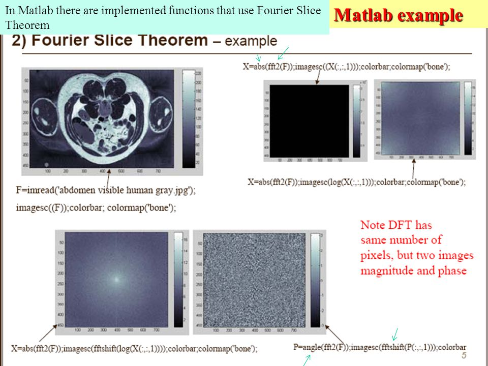 Matlab example In Matlab there are implemented functions that use Fourier Slice Theorem