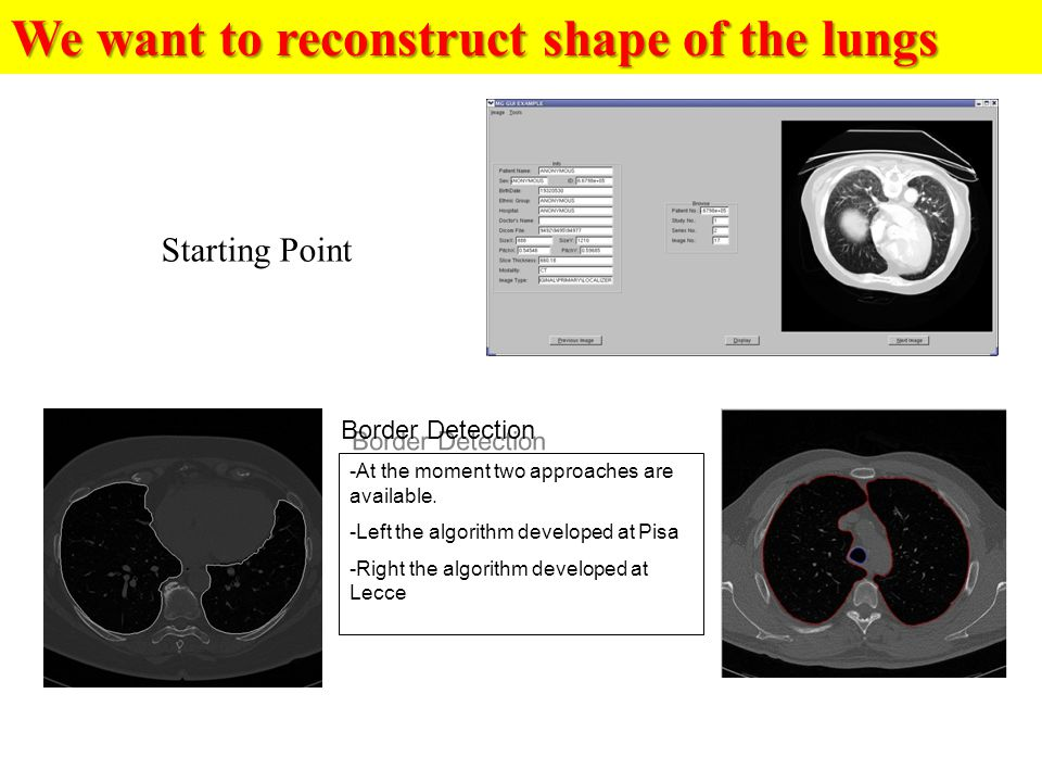 We want to reconstruct shape of the lungs