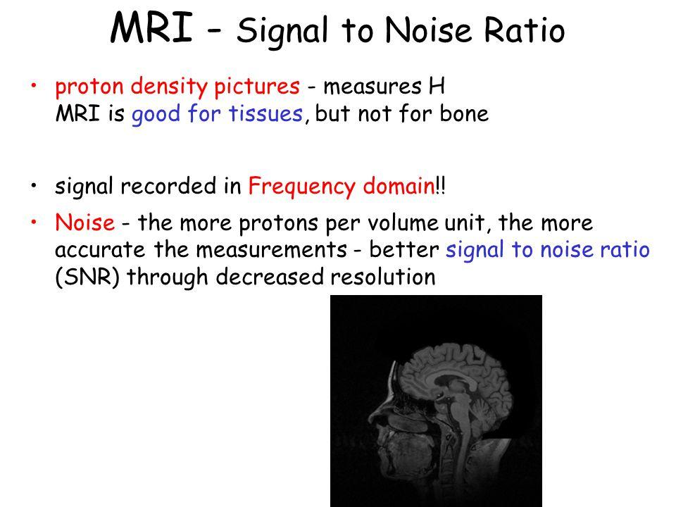MRI - Signal to Noise Ratio