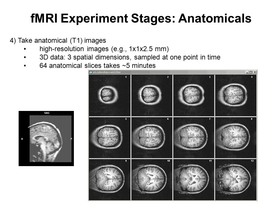fMRI Experiment Stages: Anatomicals