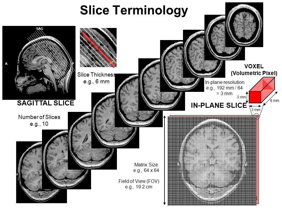Slice Terminology SAGITTAL SLICE IN-PLANE SLICE VOXEL