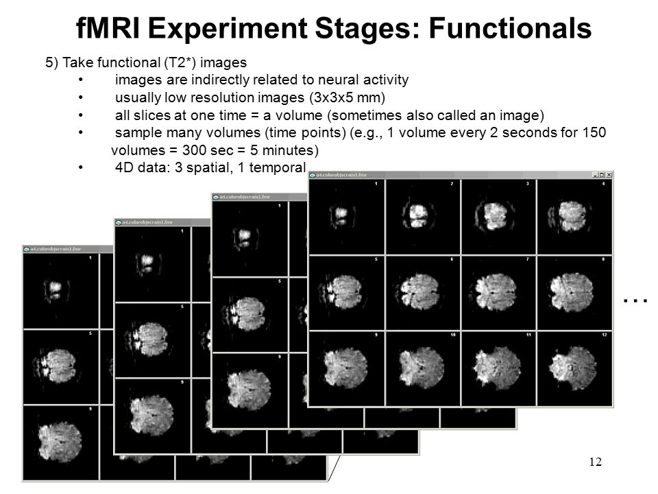 fMRI Experiment Stages: Functionals
