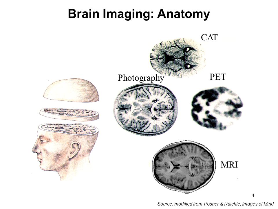 Brain Imaging: Anatomy