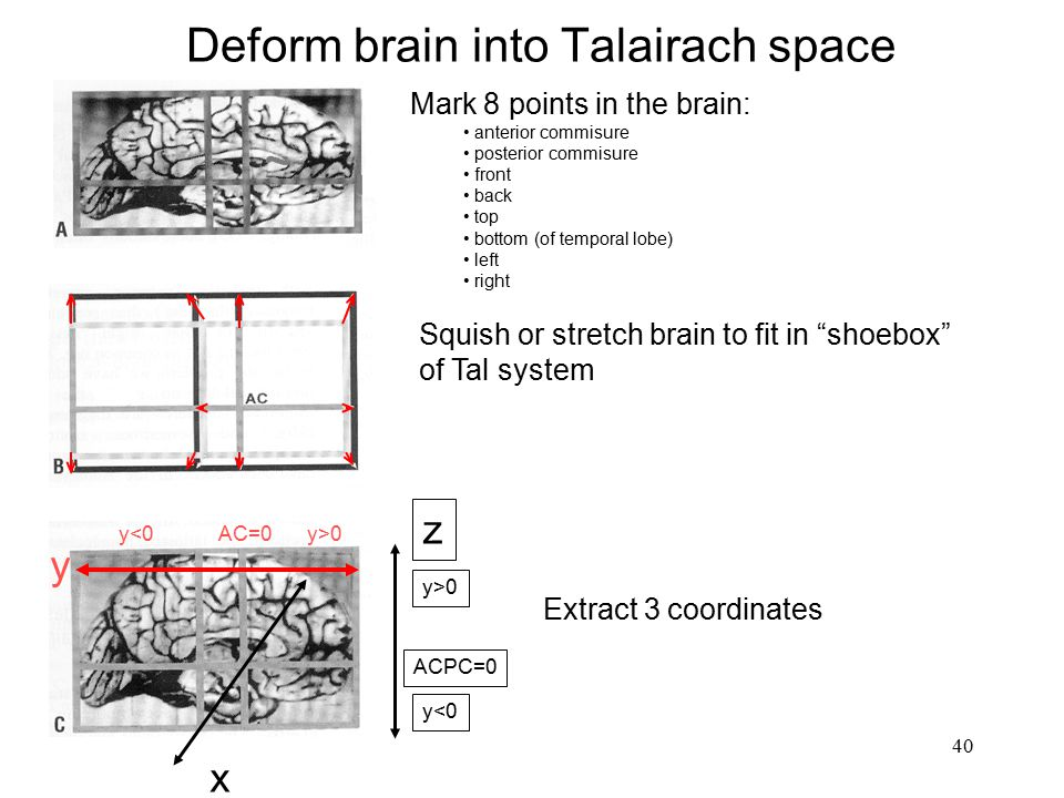 Deform brain into Talairach space