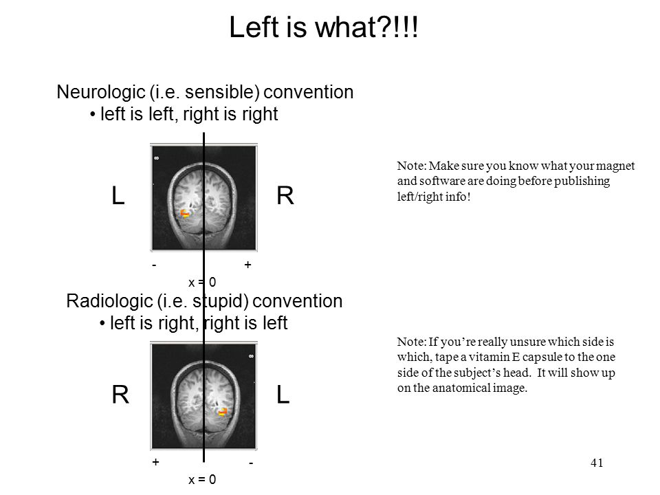 Left is what !!! L R R L Neurologic (i.e. sensible) convention