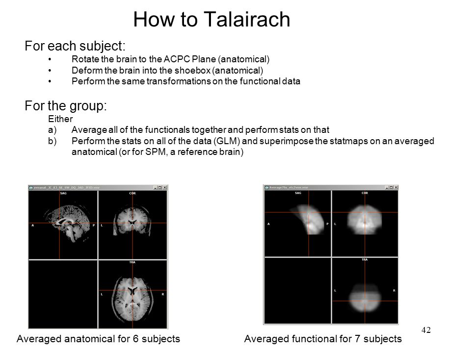 How to Talairach For each subject: For the group: