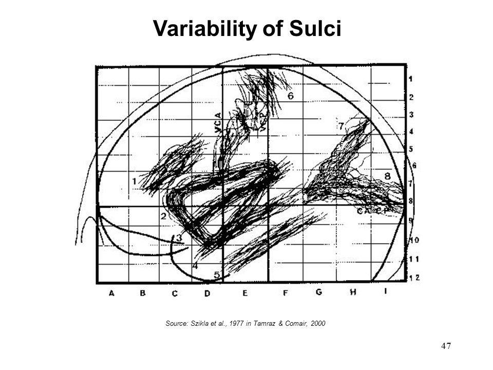 Variability of Sulci Variability of Sulci