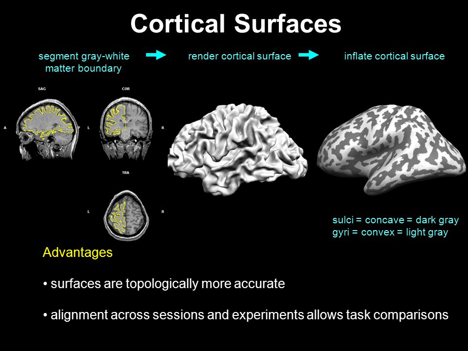 Cortical Surfaces Advantages surfaces are topologically more accurate
