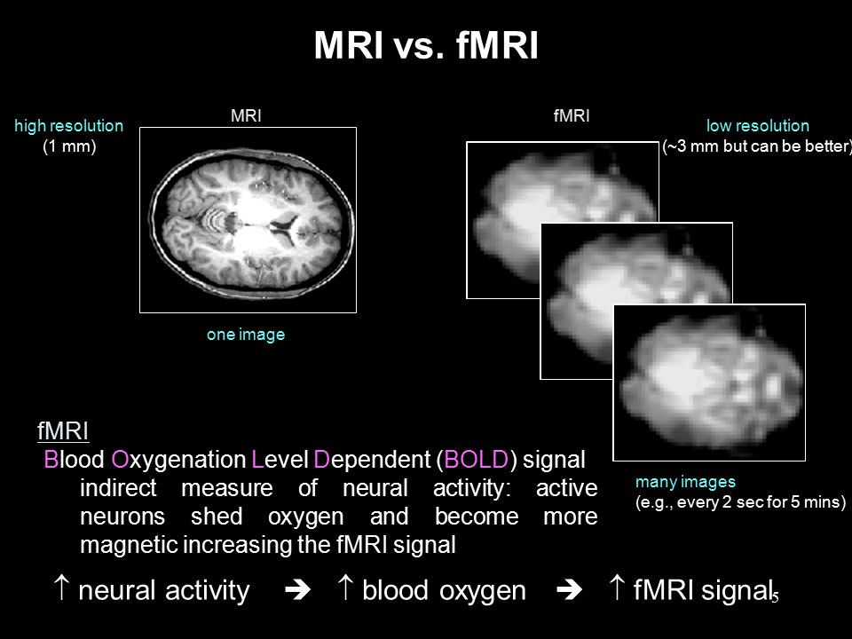  neural activity   blood oxygen   fMRI signal