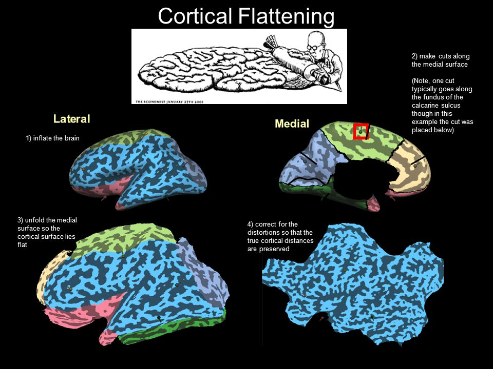 Cortical Flattening 2) make cuts along the medial surface