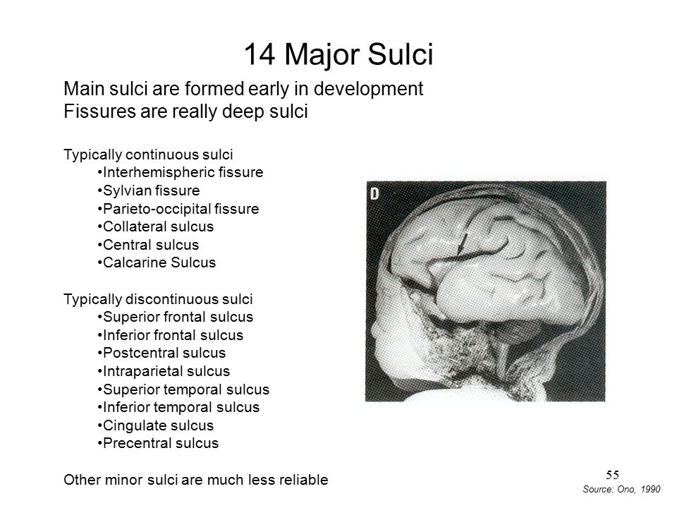14 Major Sulci Main sulci are formed early in development