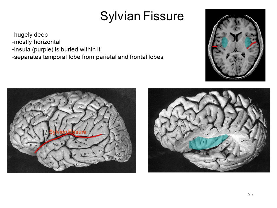 Sylvian Fissure -hugely deep -mostly horizontal