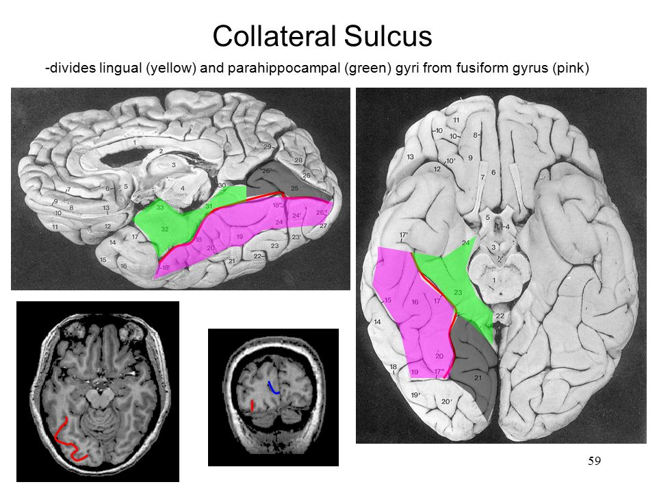 Collateral Sulcus -divides lingual (yellow) and parahippocampal (green) gyri from fusiform gyrus (pink)