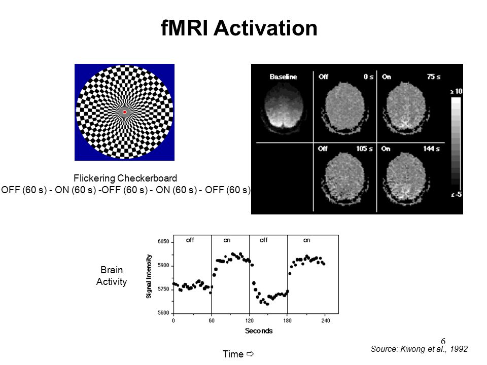 fMRI Activation Flickering Checkerboard