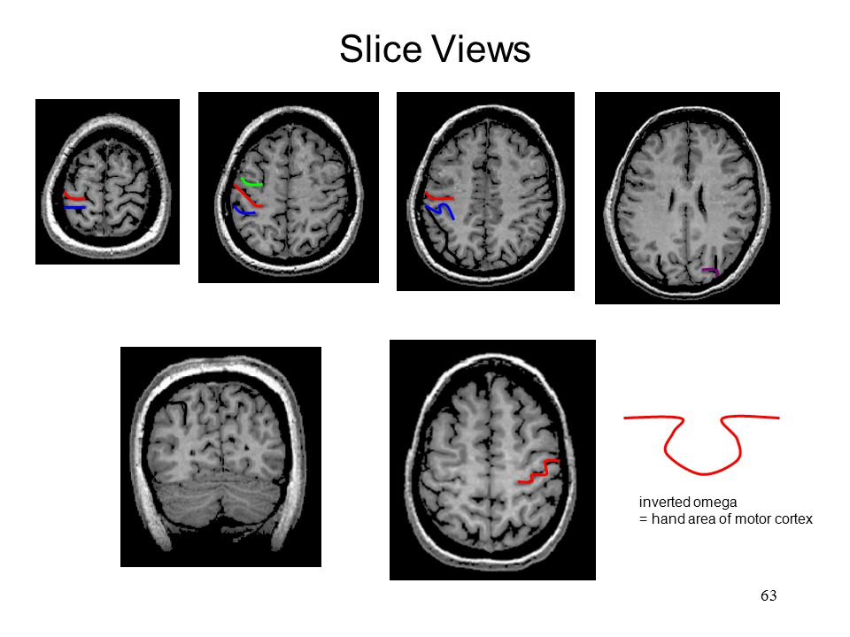 Slice Views inverted omega = hand area of motor cortex