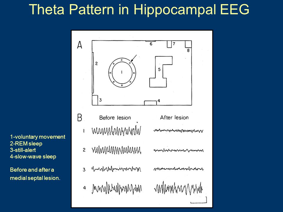Theta Pattern in Hippocampal EEG