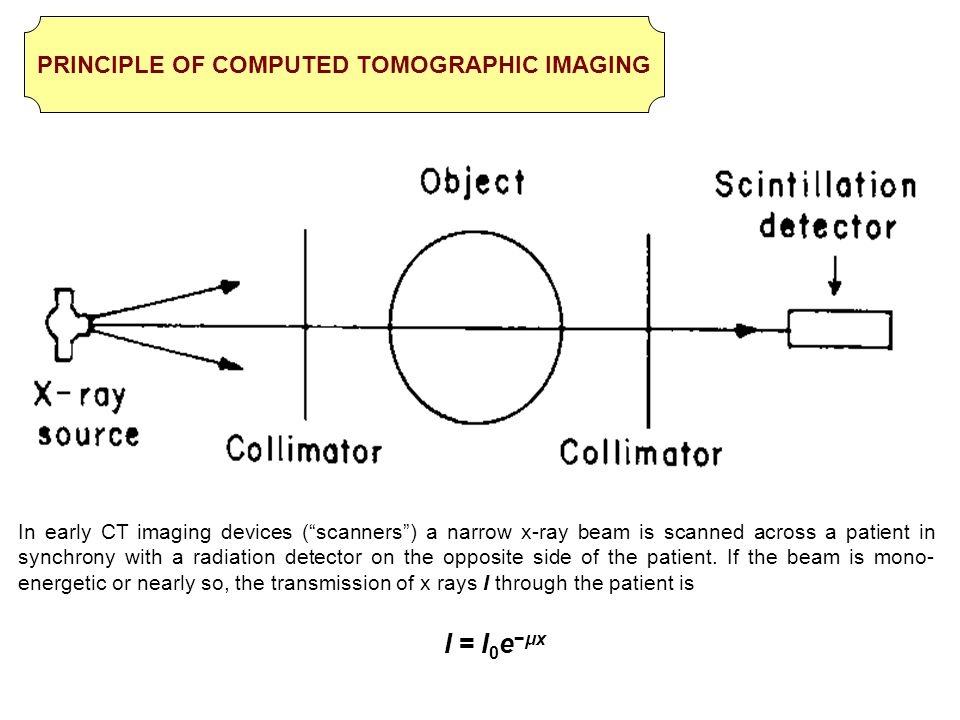 PRINCIPLE OF COMPUTED TOMOGRAPHIC IMAGING
