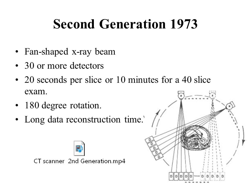 Second Generation 1973 Fan-shaped x-ray beam 30 or more detectors