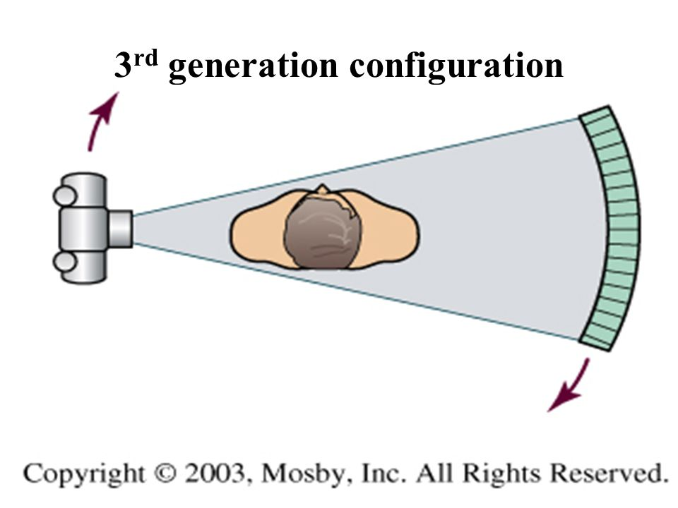 3rd generation configuration
