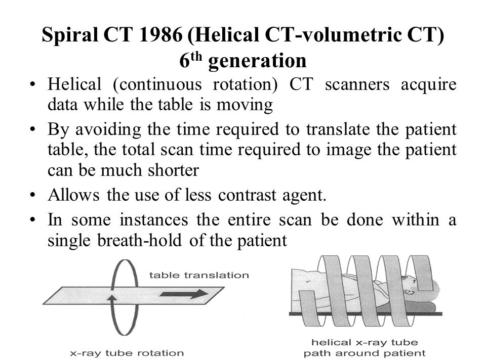 Spiral CT 1986 (Helical CT-volumetric CT) 6th generation