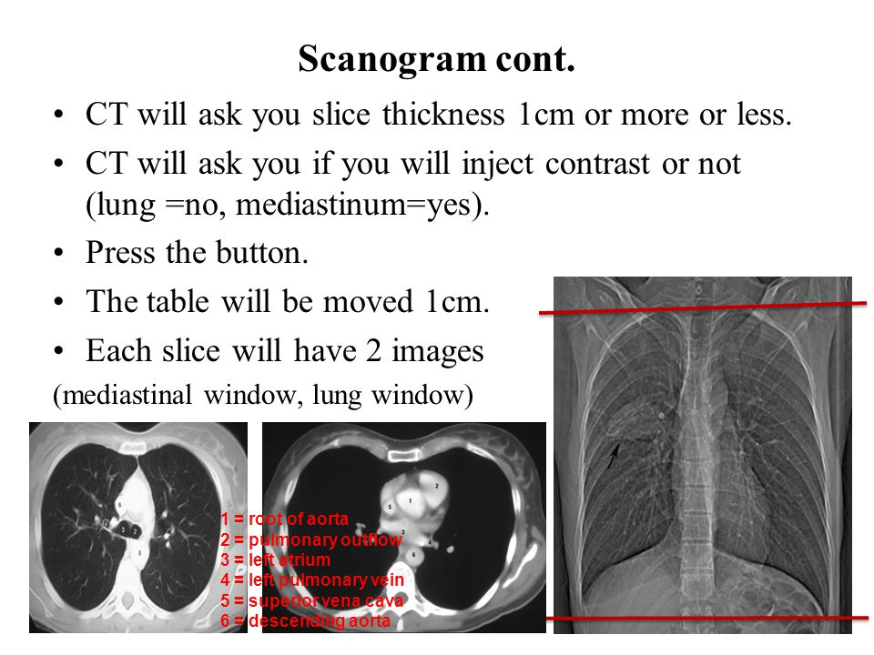 Scanogram cont. CT will ask you slice thickness 1cm or more or less.