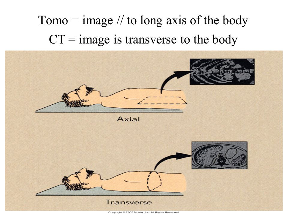 Tomo = image // to long axis of the body CT = image is transverse to the body