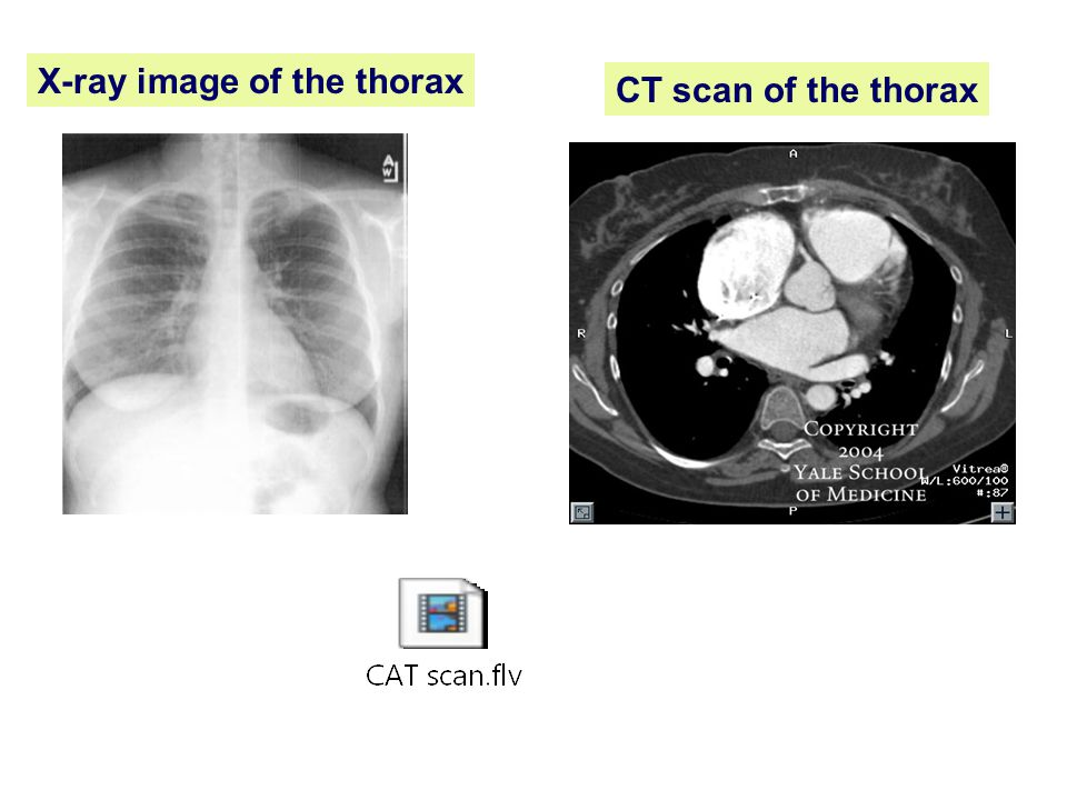 X-ray image of the thorax CT scan of the thorax